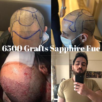 6500 grafts sapphire fue