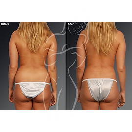Liposuction before after 21