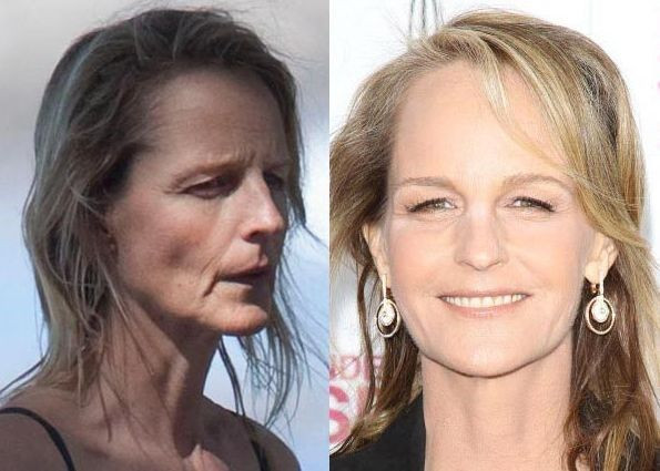 Helen Hunt plastic surgery before after
