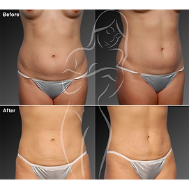 Liposuction before after 7