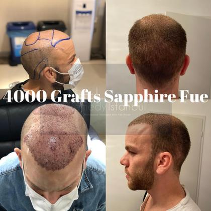 4000 grafts sapphire fue