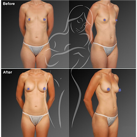 Liposuction before after 11