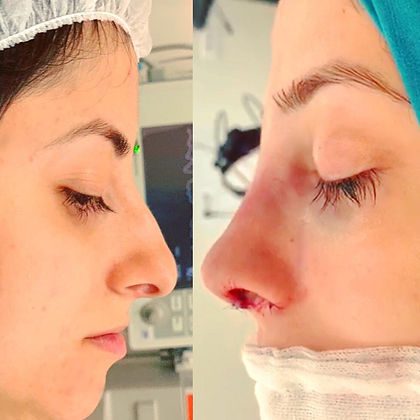rhinoplasty before after 8