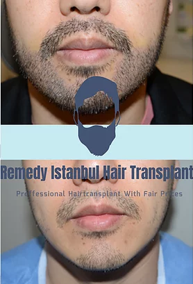 Beard and mustache transplant before after