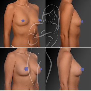 Breast Surgery Before After 7