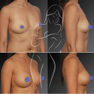 Breast Surgery Before After 4