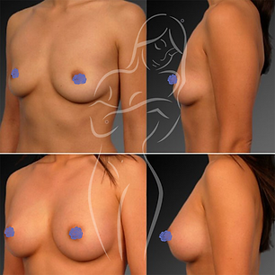 Breast Surgery Before After 24