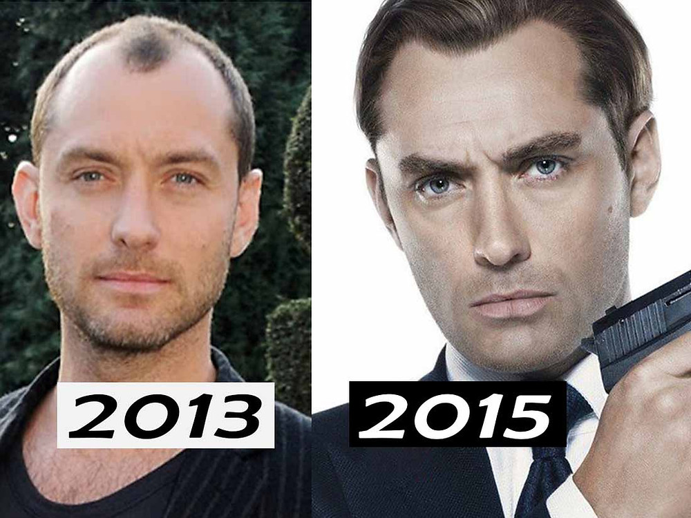 Jude law hair transplant before after