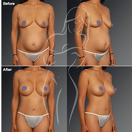 Liposuction before after 5