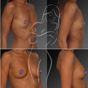 Breast Surgery Before After 25