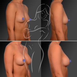 Breast Surgery Before After 8