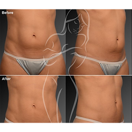 Liposuction before after 15