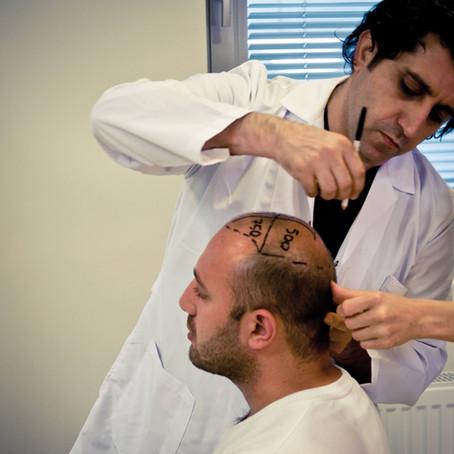 Greffe de cheveux Turquie coût