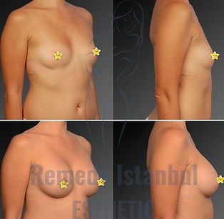 Breast Surgery Before After 33