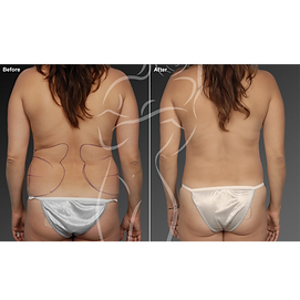 Liposuction before after 4