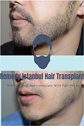Felix T. Hair transplant review