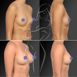Breast Surgery Before After 30
