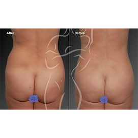 Liposuction before after 3