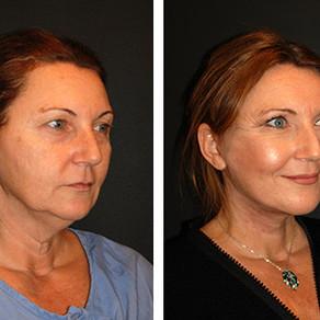 Chirurgie de lifting du visage en profondeur
