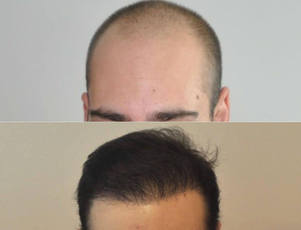 Hair Transplant Results Turkey