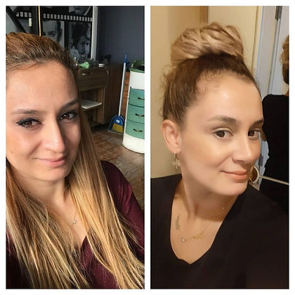 rhinoplasty before after 21