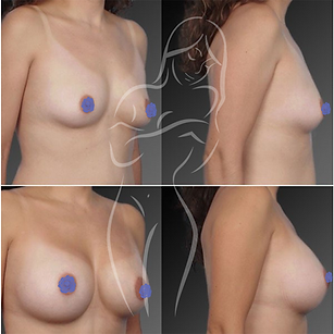 Breast Surgery Before After 14
