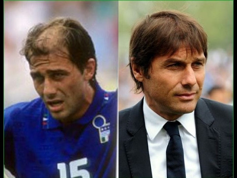 Antonio Conte hair transplant before after