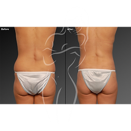 Liposuction before after 19