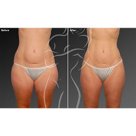 Liposuction before after 26