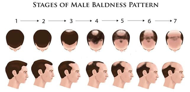 Male Baldness Pattern