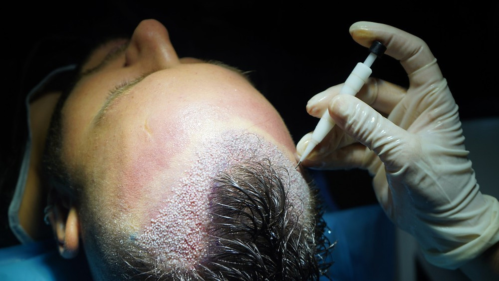 What is DHI Hair Transplant
