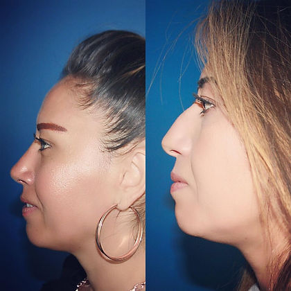rhinoplasty before after 5