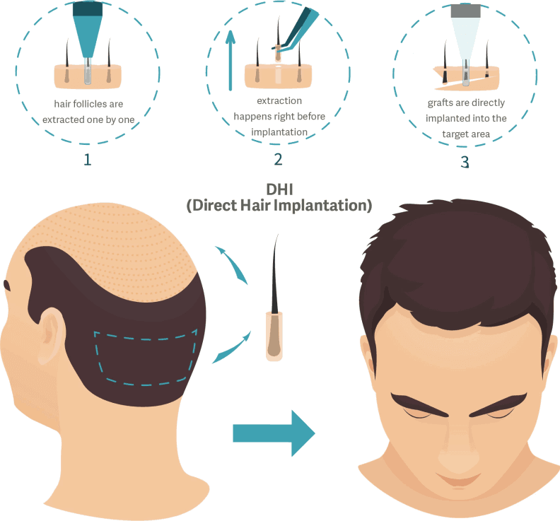 DHI Hair Transplant in Turkey
