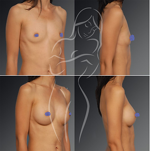 Breast Surgery Before After 3