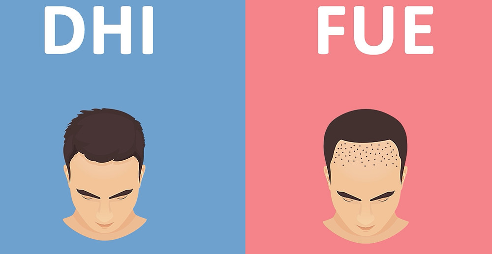 Differences Between DHI and FUE Technique