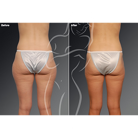 Liposuction before after 8