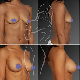 Breast Surgery Before After 6