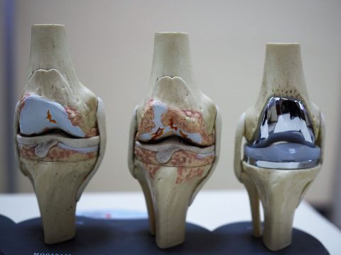 total-diz-protezi-2-480x360.jpg