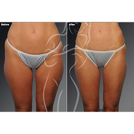 Liposuction before after 2