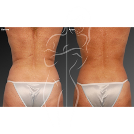 Liposuction before after 13