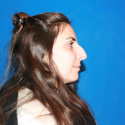 rhinoplasty before after 27
