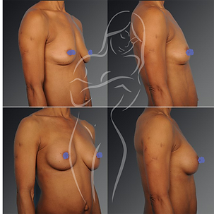 Breast Surgery Before After 31