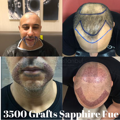3500 Grafts sapphire fue