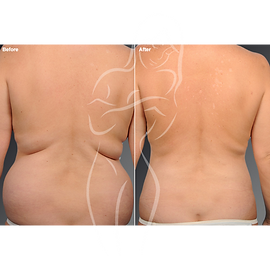 Liposuction before after 20