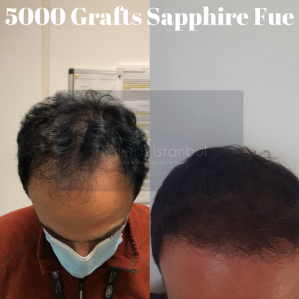 5000 grafts sapphire fue