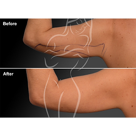 Liposuction before after 22