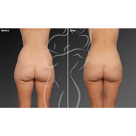 Liposuction before after 27