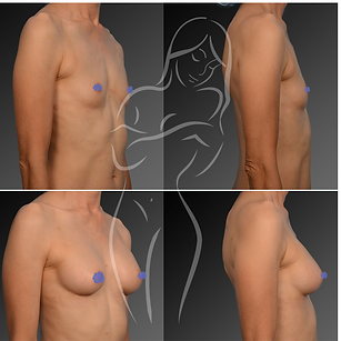Breast Surgery Before After 20