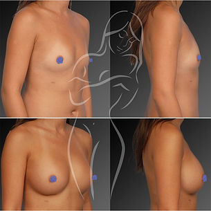 Breast Surgery Before After 21