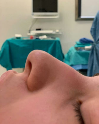 rhinoplasty before after 25